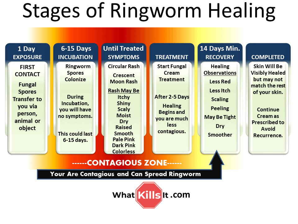 Stages of Ringworm Healing - See What Stage You're In and ...
